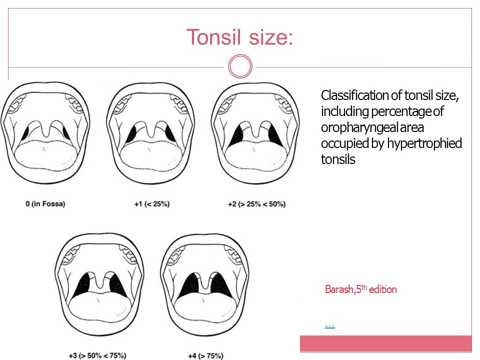 Tonsil size: Classification of tonsil size, including percentage of oropharyngeal area. occupied by hypertrophied tonsils.