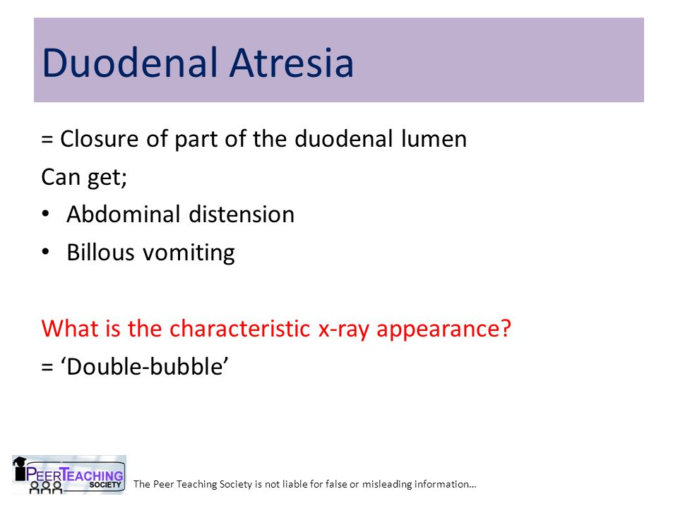 Duodenal Atresia = Closure of part of the duodenal lumen Can get;