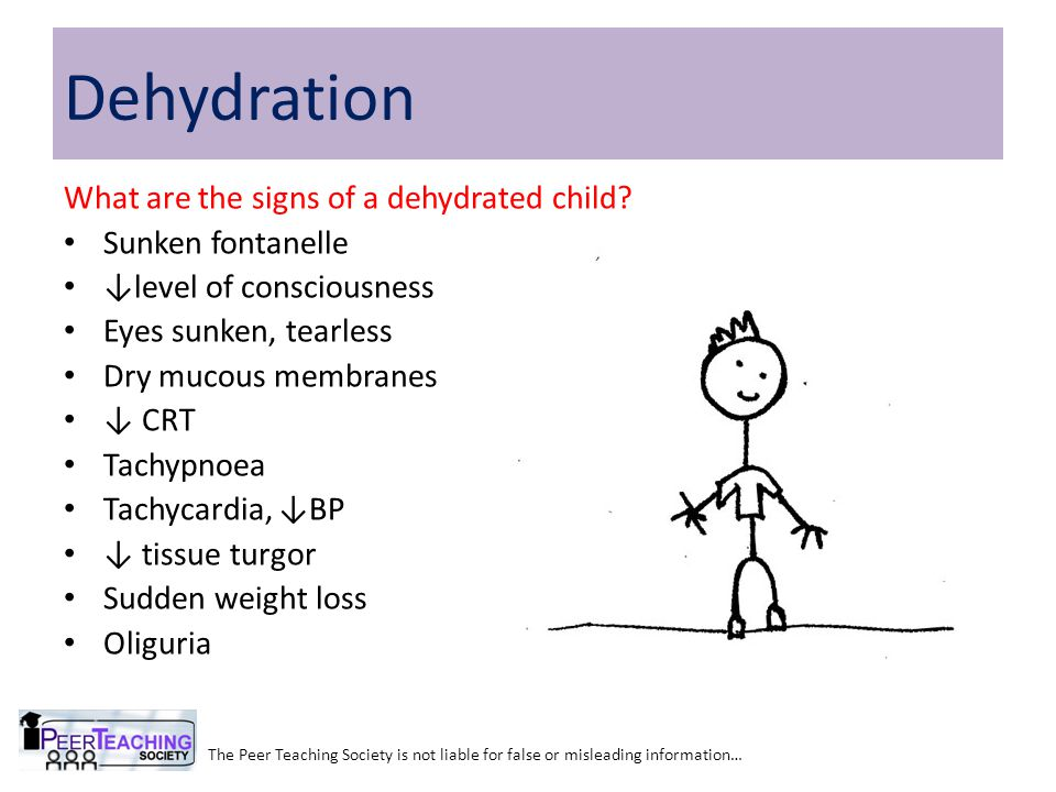 Dehydration What are the signs of a dehydrated child