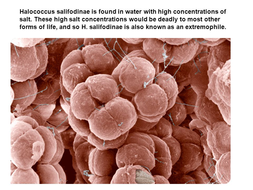 Halococcus salifodinae is found in water with high concentrations of salt.