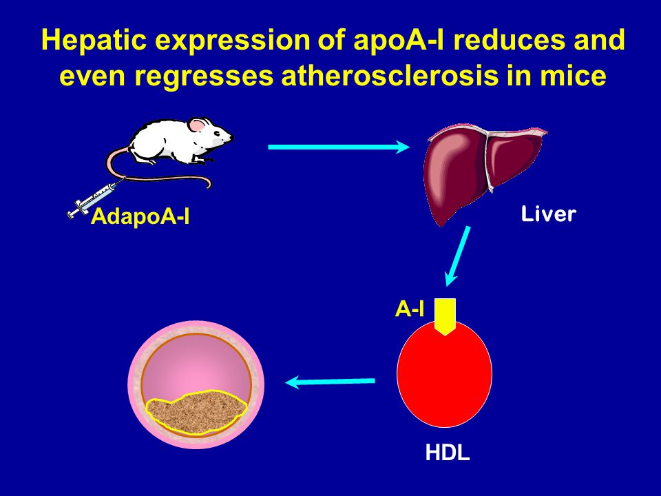 Hepatic expression of apoA-I reduces and even regresses atherosclerosis in mice