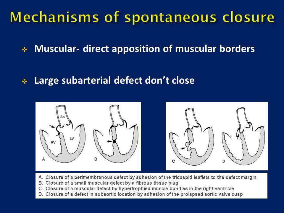 Mechanisms of spontaneous closure