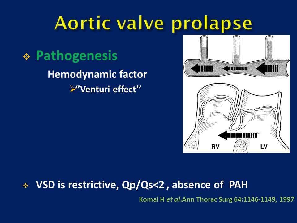 Aortic valve prolapse Pathogenesis Hemodynamic factor