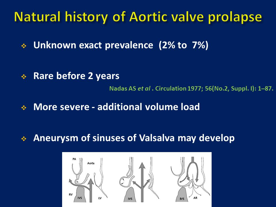 Natural history of Aortic valve prolapse