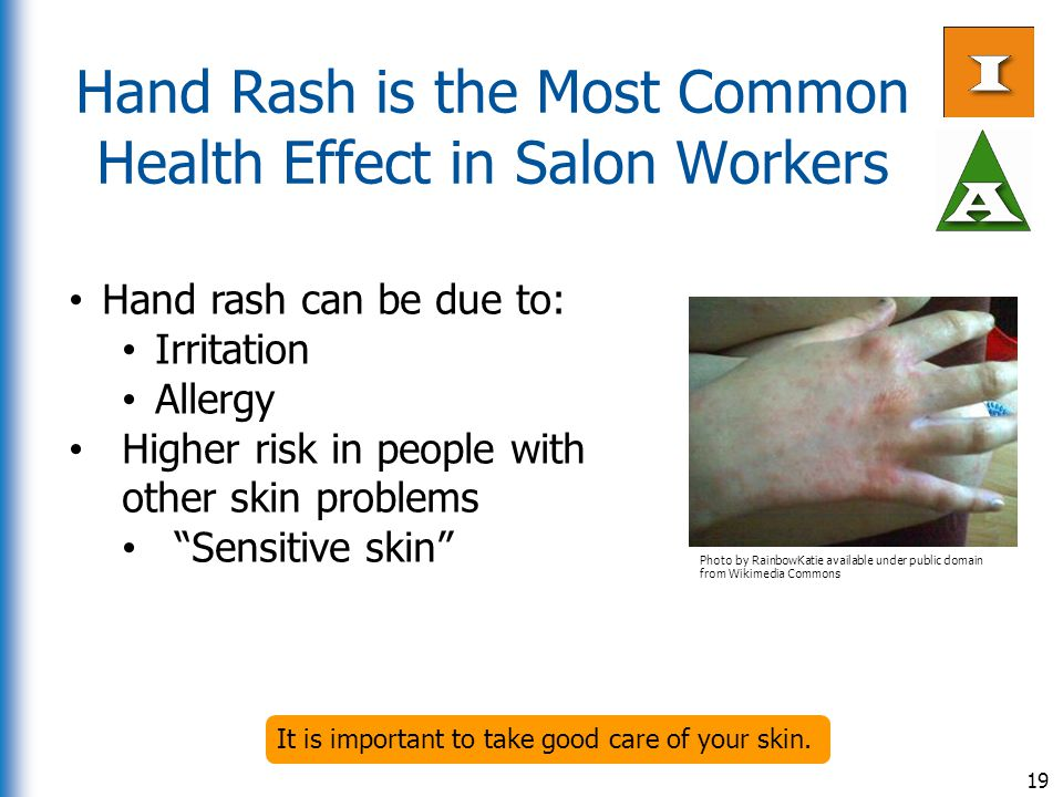 Hand Rash is the Most Common Health Effect in Salon Workers