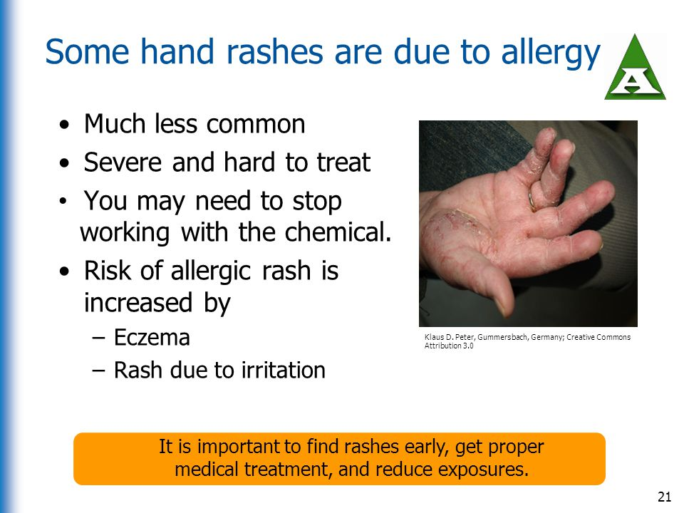 Some hand rashes are due to allergy