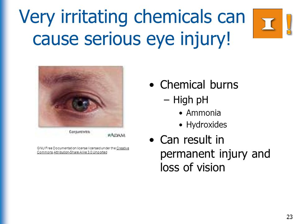 Very irritating chemicals can cause serious eye injury!