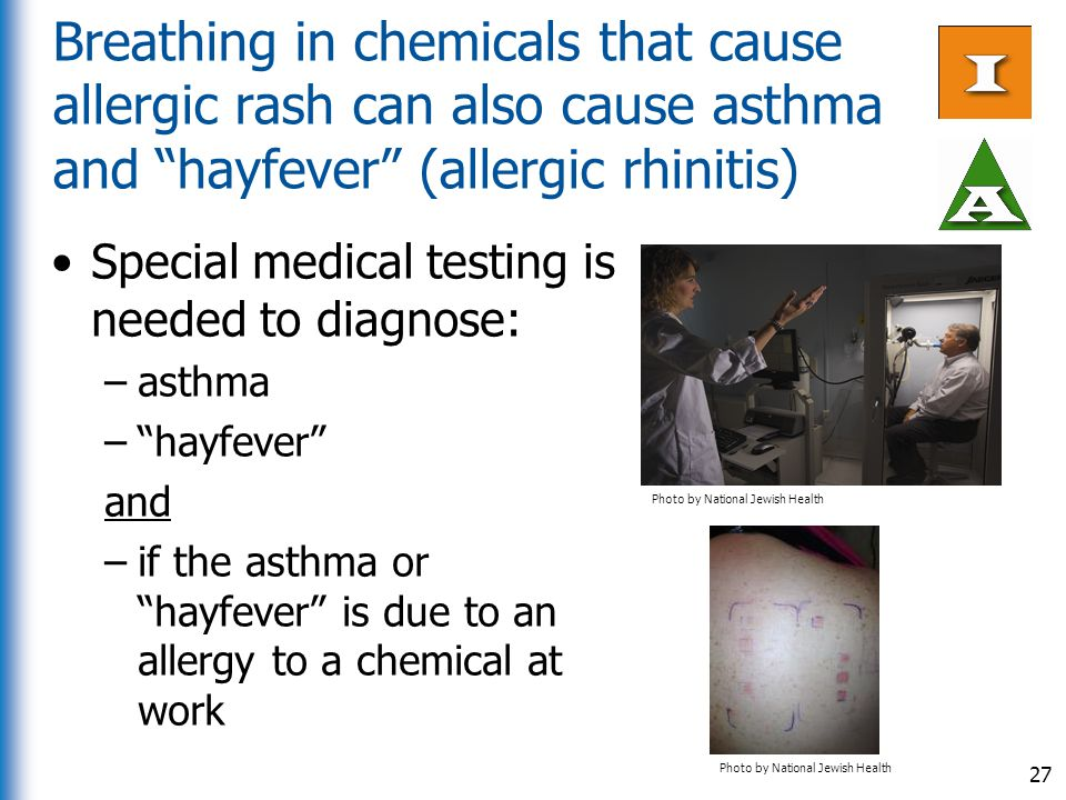 Breathing in chemicals that cause allergic rash can also cause asthma and hayfever (allergic rhinitis)