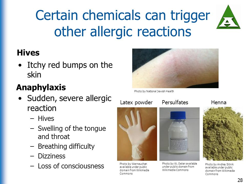 Certain chemicals can trigger other allergic reactions