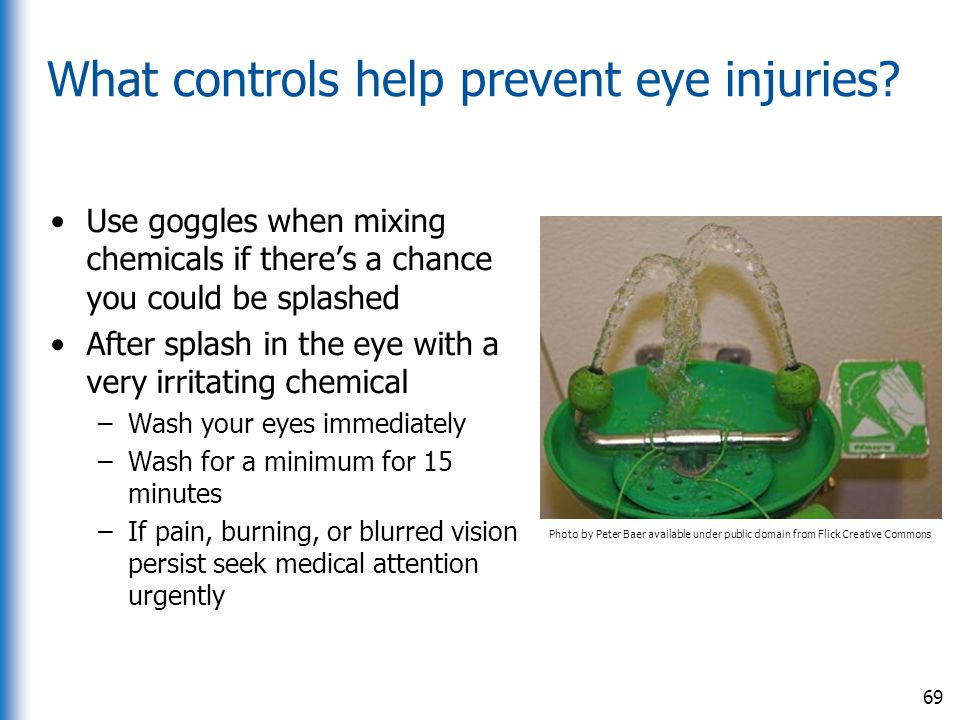 What controls help prevent eye injuries
