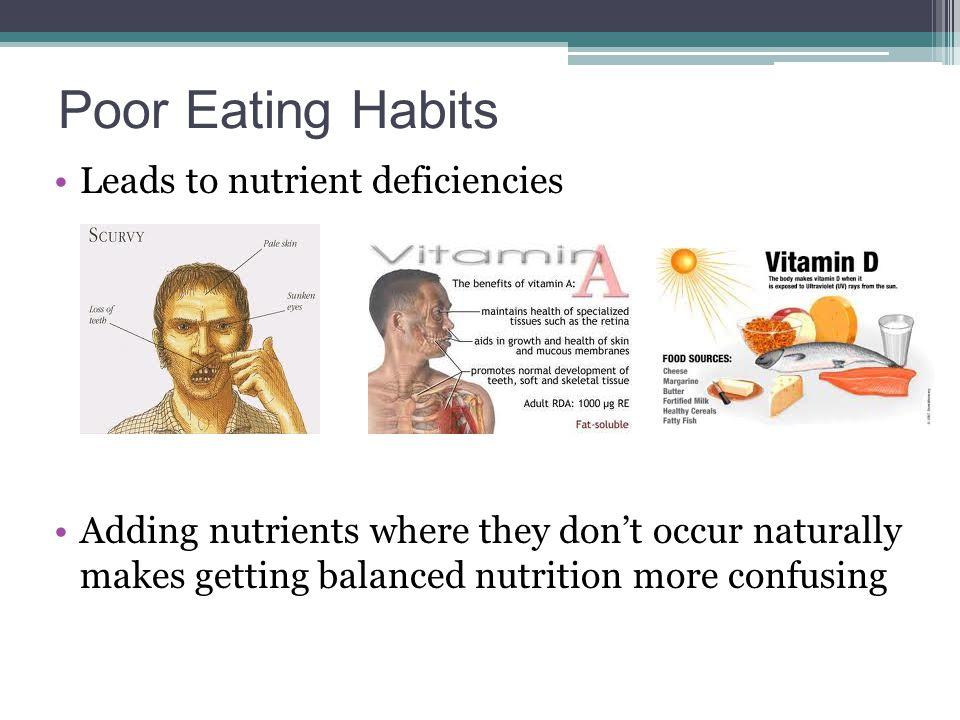 Poor Eating Habits Leads to nutrient deficiencies