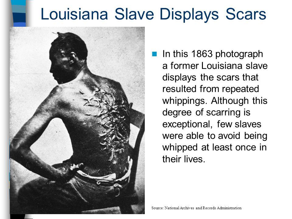 Louisiana Slave Displays Scars