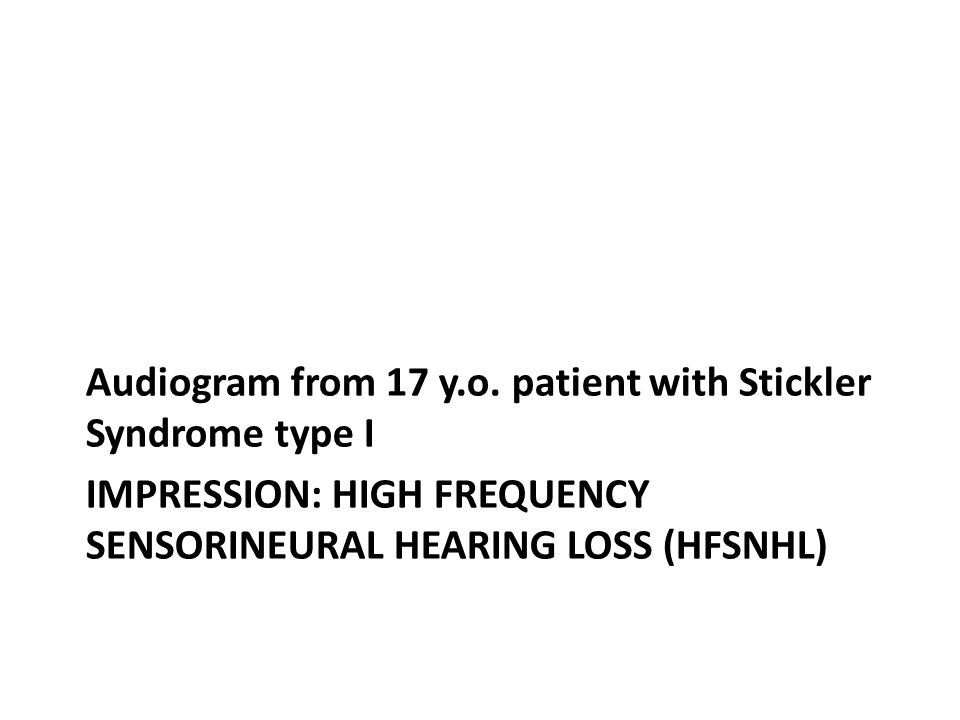 Impression: High frequency Sensorineural hearing loss (HFSNHL)