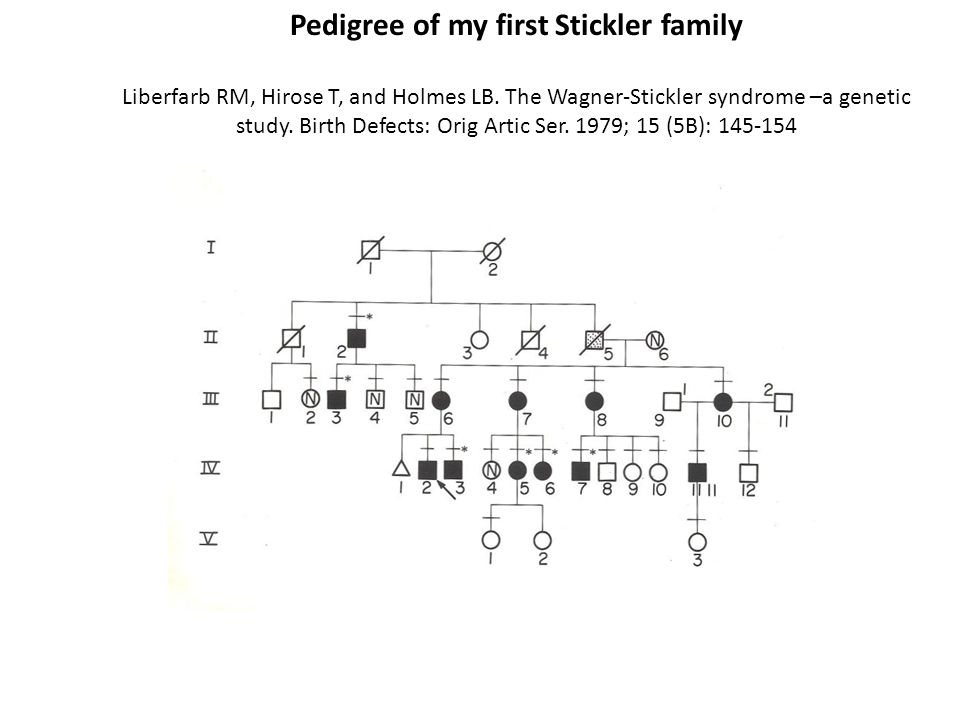Pedigree of my first Stickler family Liberfarb RM, Hirose T, and Holmes LB.