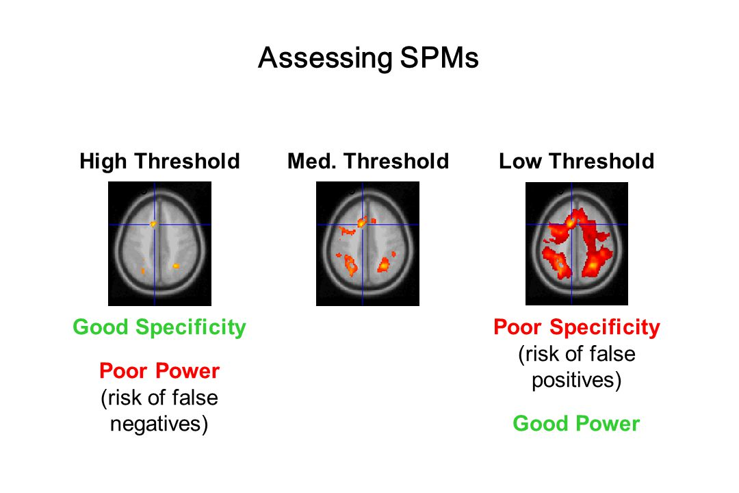 Assessing SPMs High Threshold Med. Threshold Low Threshold