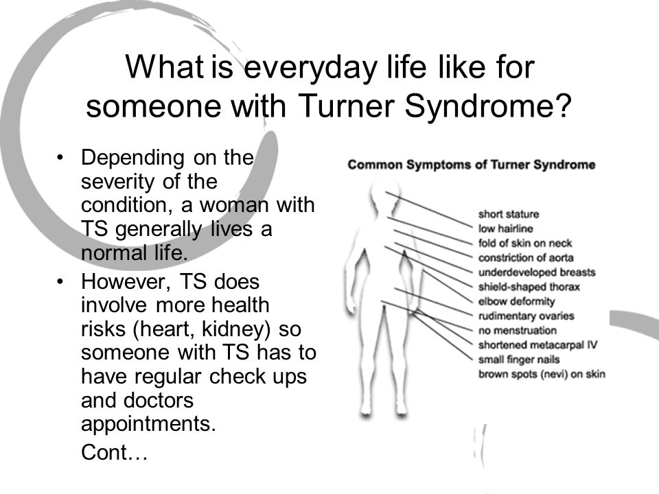 what is turners syndrome » click here to read a brief synopsis of clinical practice guidelines for the care of girls and women with turner syndrome » would you like to speak to someone.