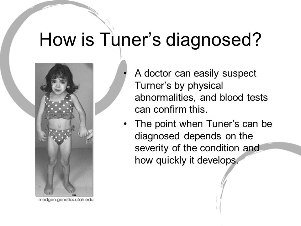 How is Tuner's diagnosed