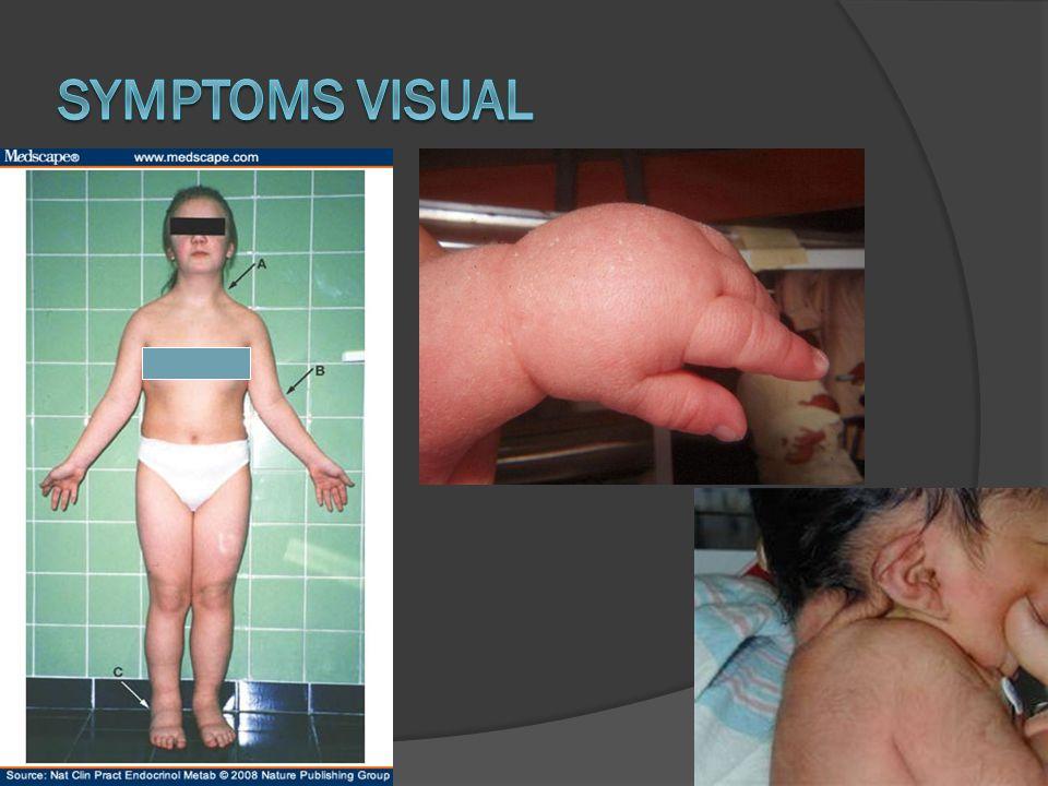 Symptoms Visual