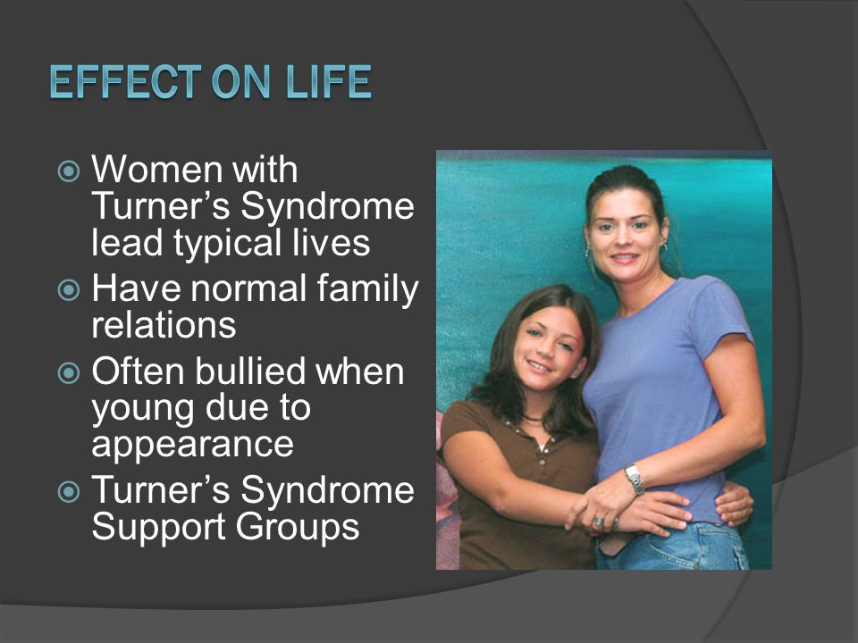 Effect on Life Women with Turner's Syndrome lead typical lives