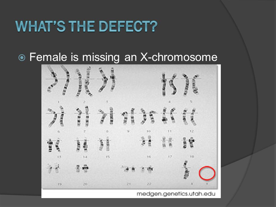 What's the defect Female is missing an X-chromosome