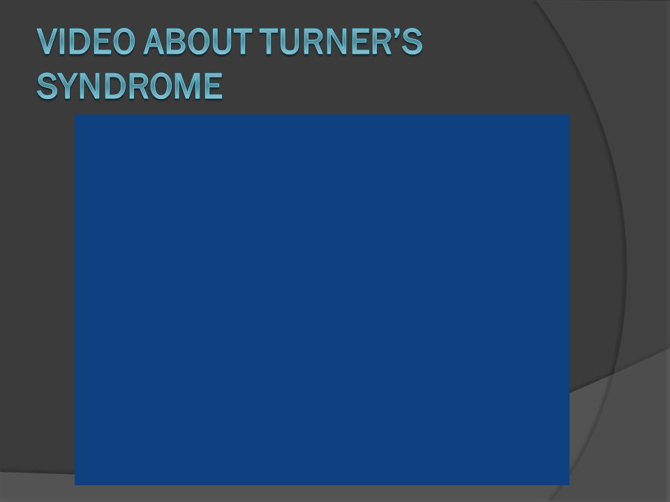 Video about Turner's Syndrome