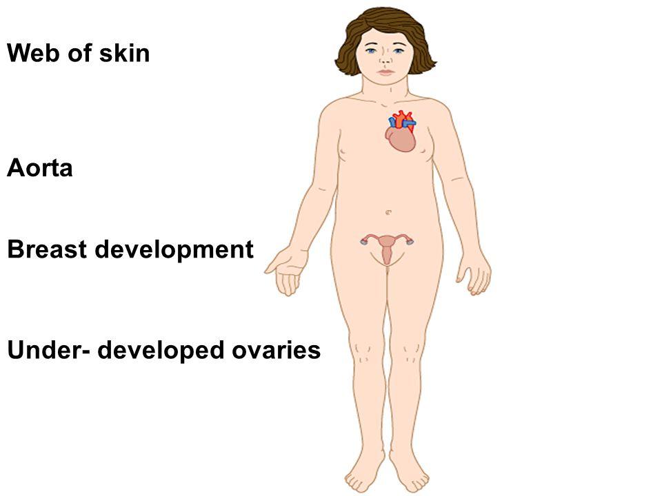 Web of skin Aorta Breast development Under- developed ovaries