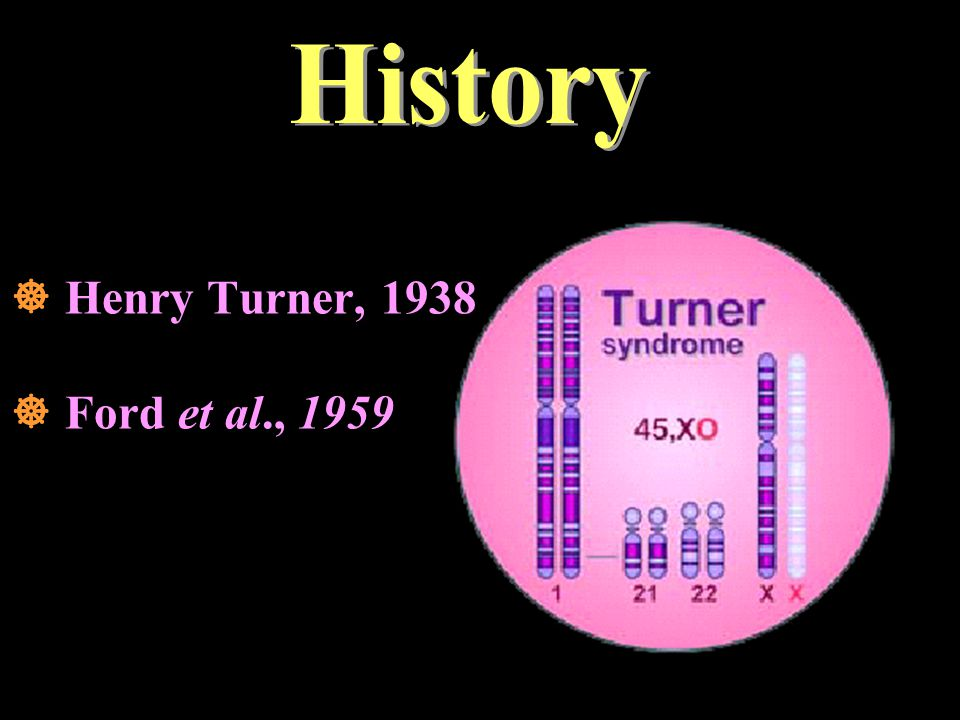 History  Henry Turner, 1938  Ford et al., 1959