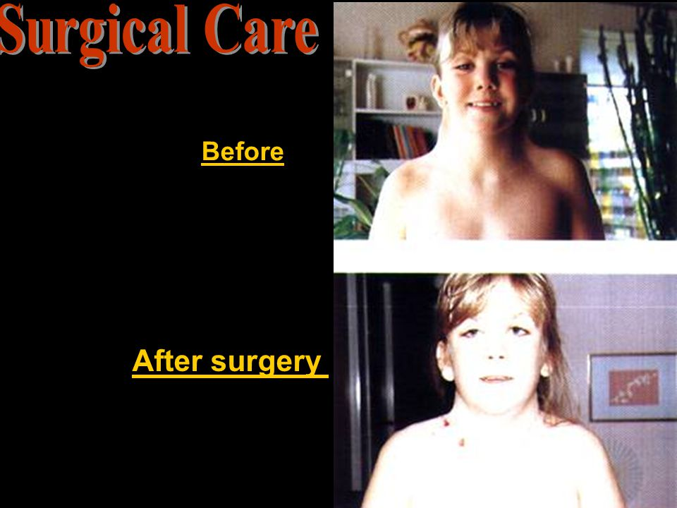 Surgical Care Before After surgery