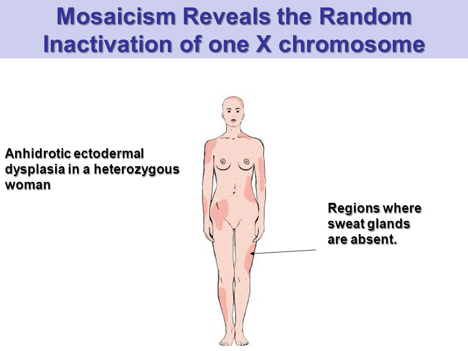 Mosaicism Reveals the Random Inactivation of one X chromosome