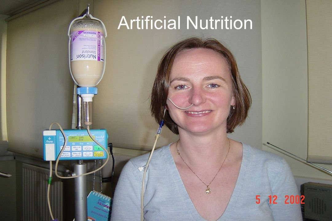 Artificial Nutrition