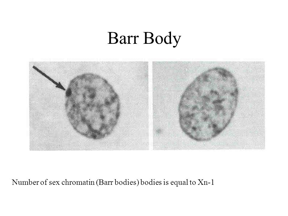Barr Body Number of sex chromatin (Barr bodies) bodies is equal to Xn-1