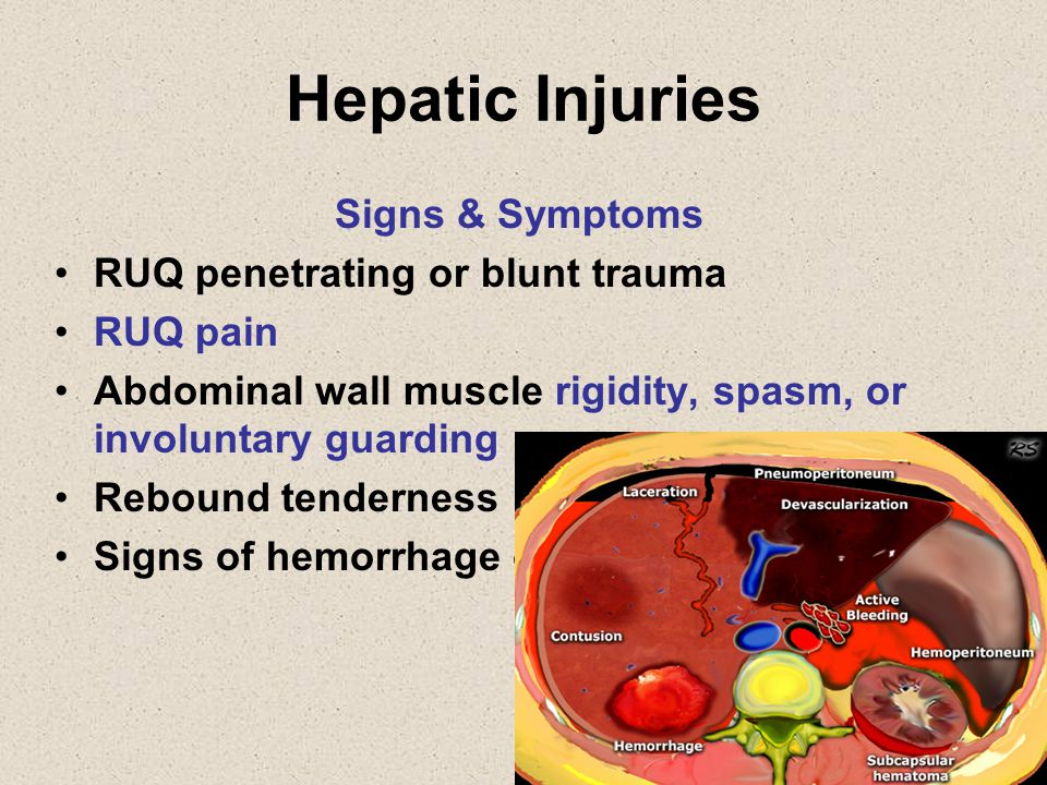 Hepatic Injuries Signs & Symptoms RUQ penetrating or blunt trauma