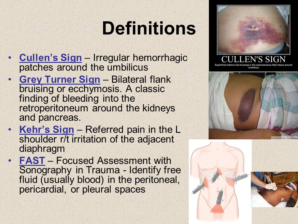 Definitions Cullen's Sign – Irregular hemorrhagic patches around the umbilicus.