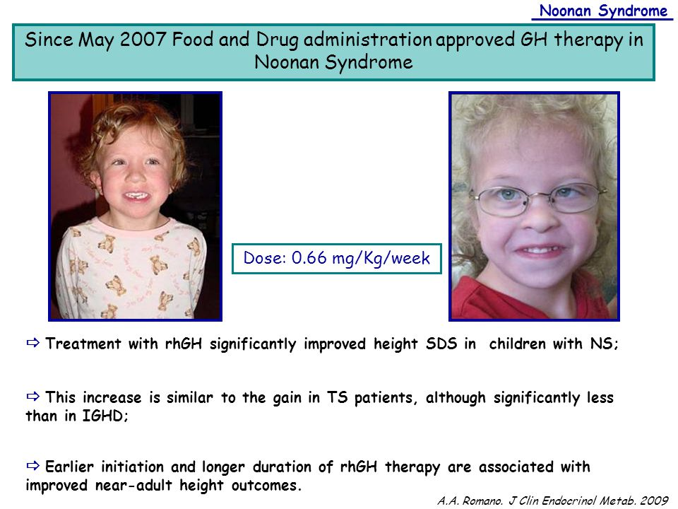 Noonan Syndrome Since May 2007 Food and Drug administration approved GH therapy in Noonan Syndrome.