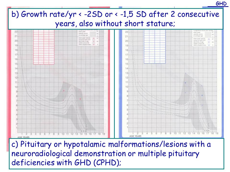 GHD b) Growth rate/yr < -2SD or < -1,5 SD after 2 consecutive years, also without short stature;