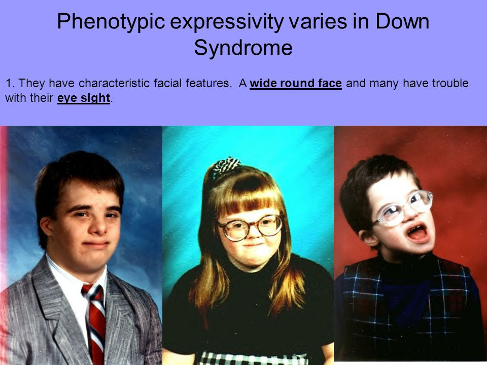 Phenotypic expressivity varies in Down Syndrome