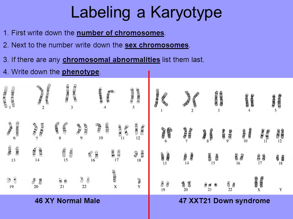Labeling a Karyotype 1. First write down the number of chromosomes.