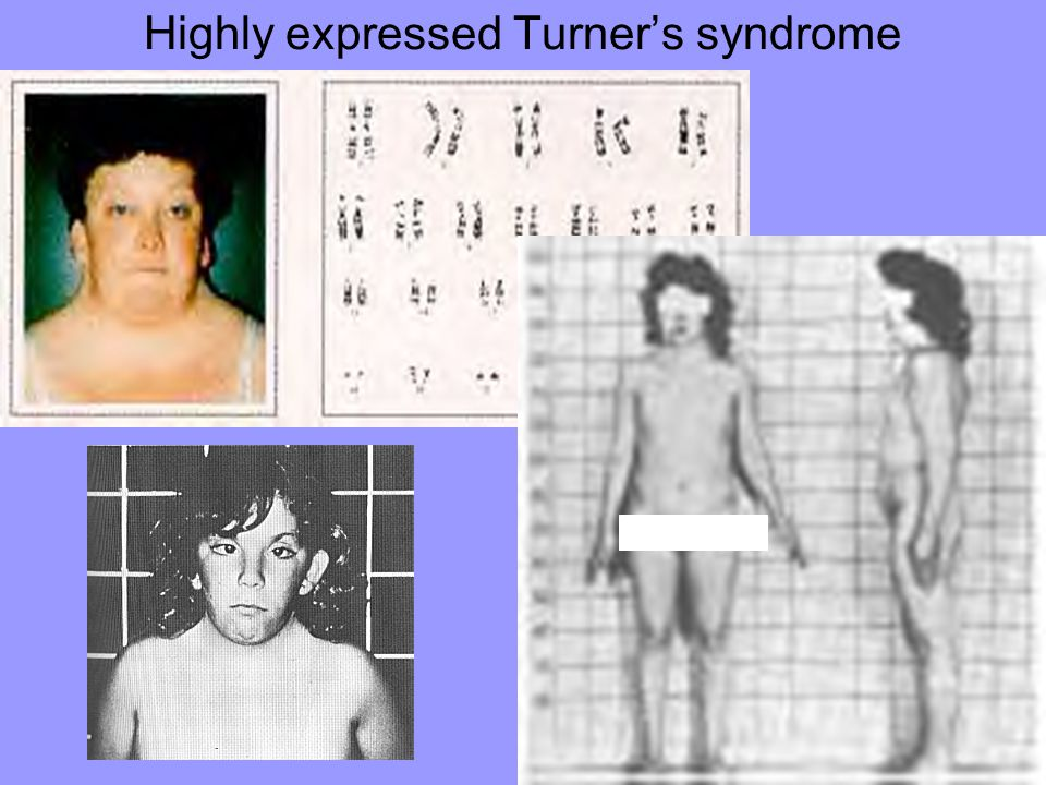 Highly expressed Turner's syndrome