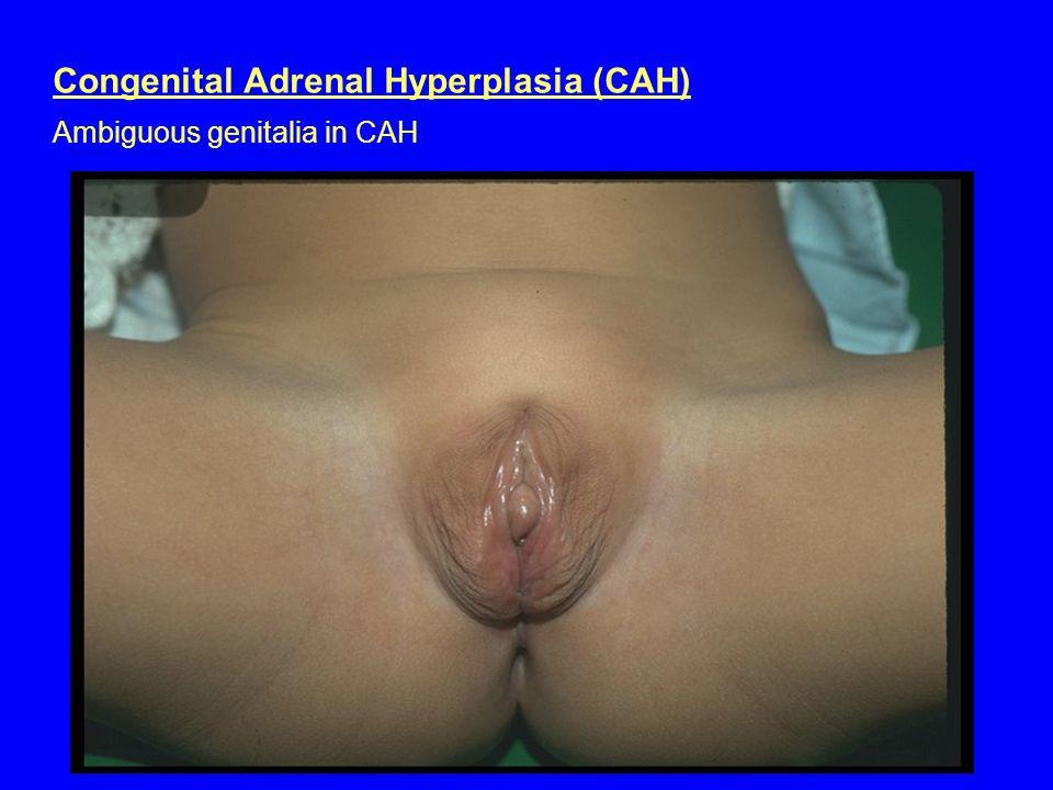 Congenital Adrenal Hyperplasia (CAH) Ambiguous genitalia in CAH