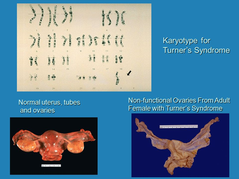 Karyotype for Turner's Syndrome