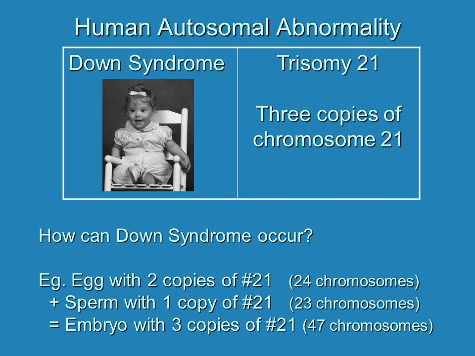 autosomal chromosomal abnormalities essay - genetic and chromosomal abnormalities were the topic of focus for this paper and presentation a genetic/chromosomal abnormality is when an error occurs in the number of chromosomes or the structure of the chromosomes these abnormalities lead to physical, as well as mental birth defects.