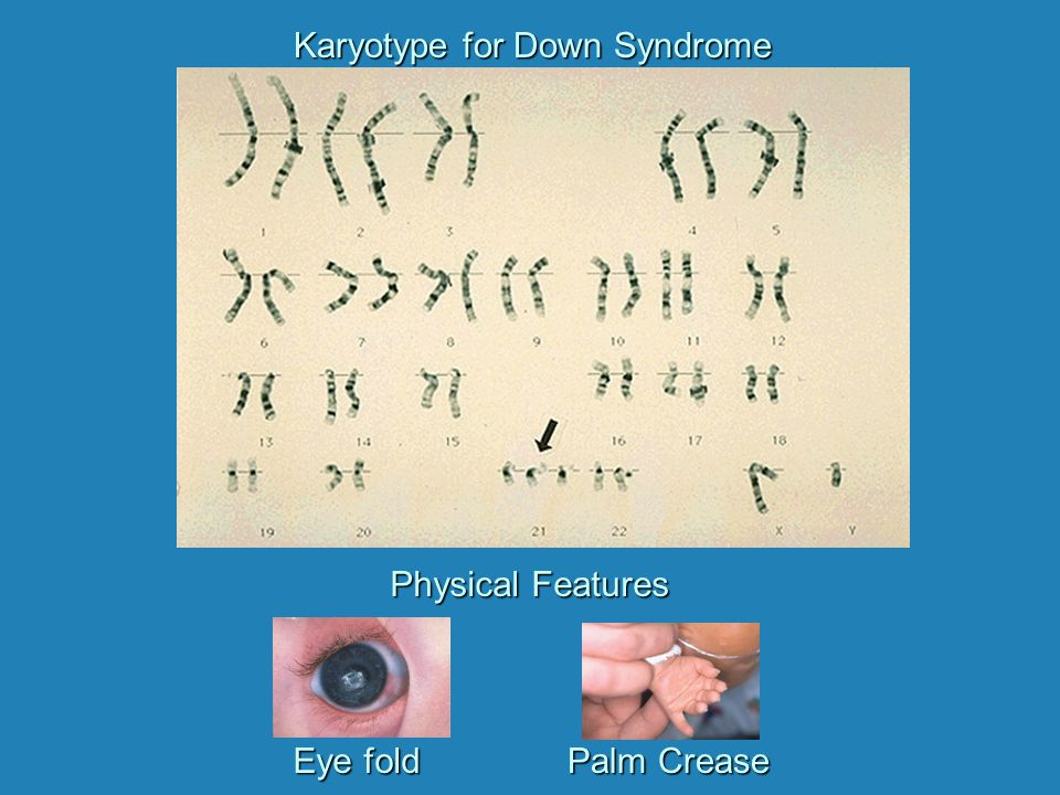 Karyotype for Down Syndrome
