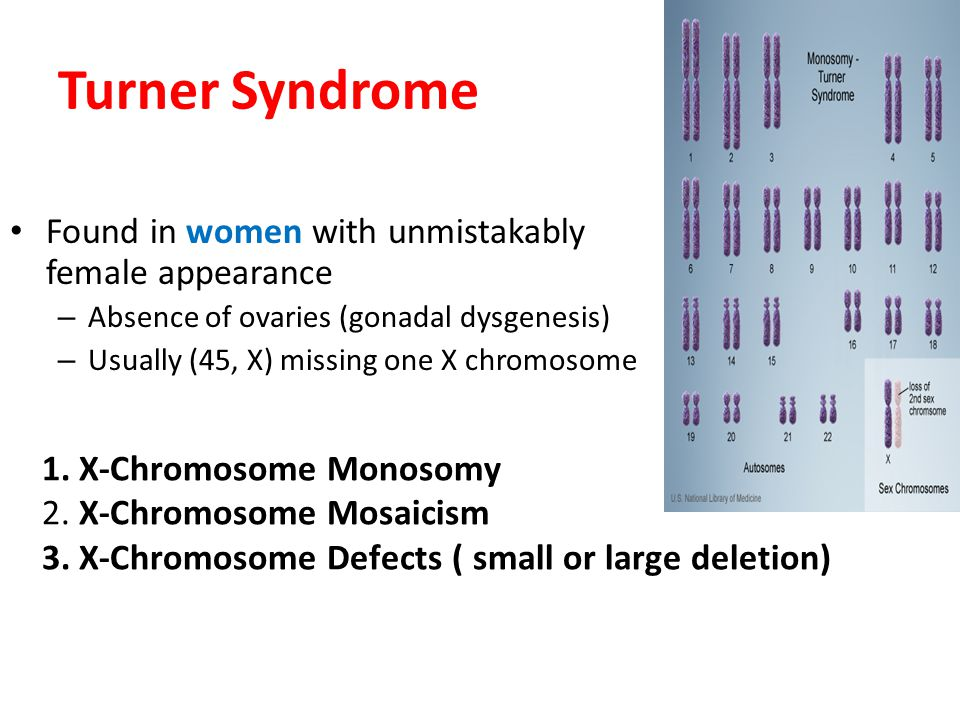 Turner Syndrome Found in women with unmistakably female appearance. Absence of ovaries (gonadal dysgenesis)