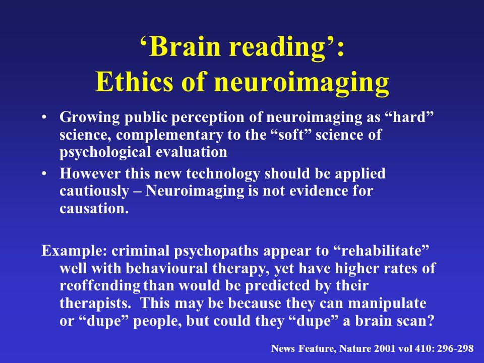 'Brain reading': Ethics of neuroimaging