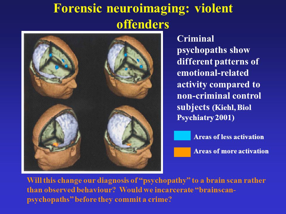 Forensic neuroimaging: violent offenders