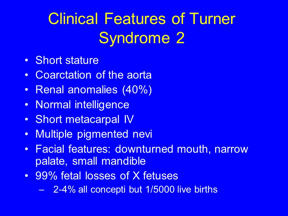 Clinical Features of Turner Syndrome 2