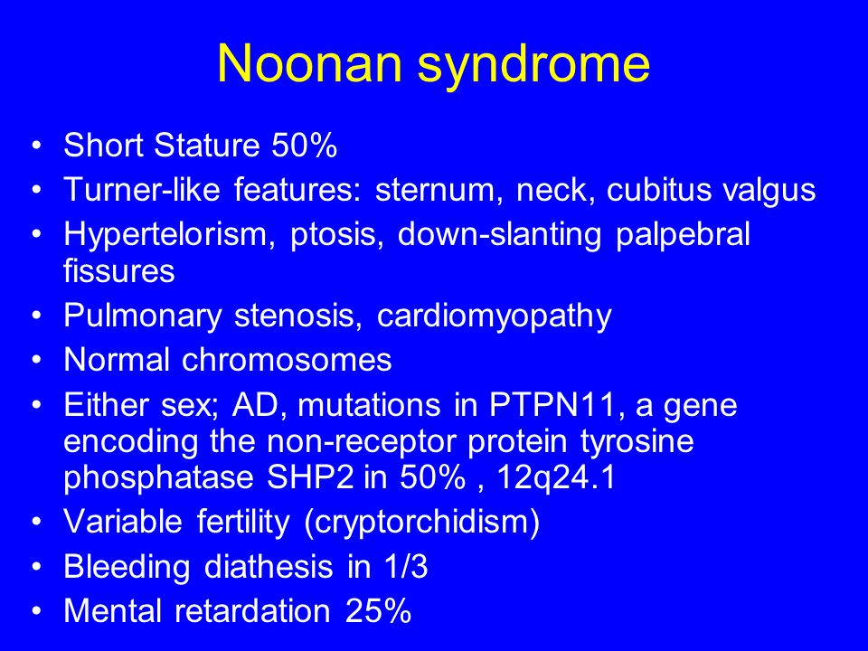 Noonan syndrome Short Stature 50%
