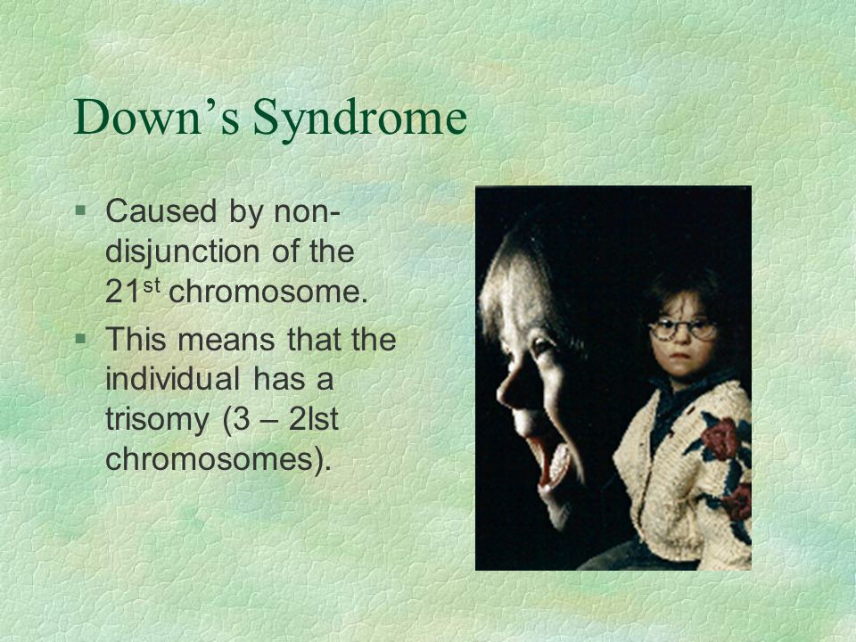 Down's Syndrome Caused by non-disjunction of the 21st chromosome.