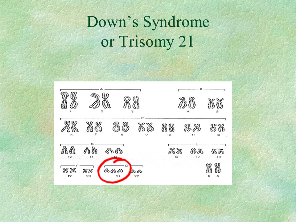 Down's Syndrome or Trisomy 21
