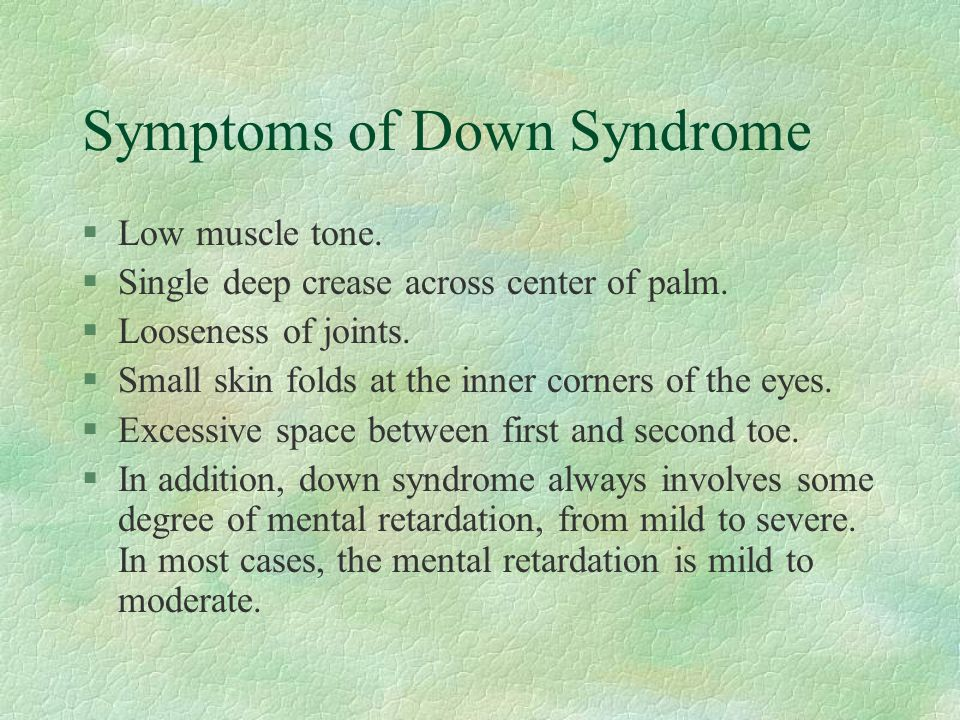 Symptoms of Down Syndrome